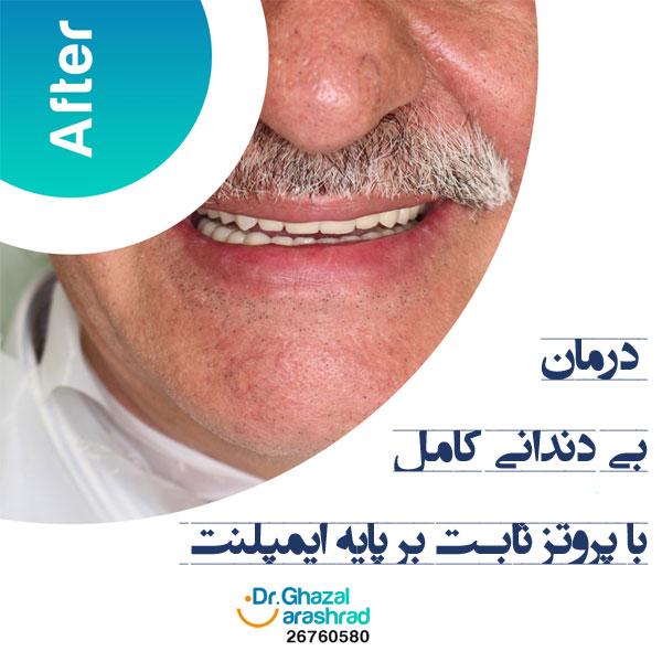 درمان بی دندانی کامل با پروتز ثابت بر پایه ایمپلنت