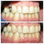 پروتز ثابت دندان ( انواع و قیمت )