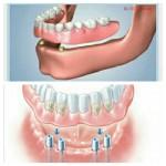 اوردنچر برپایه ایمپلنت (کاشت دندان)