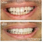 ونیر کامپوزیت یا درمان سریع بدون تراش دندان