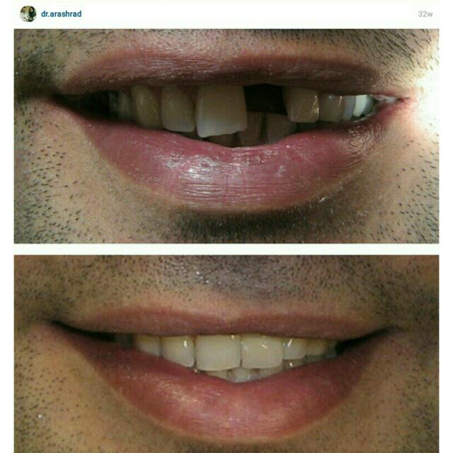 Implant prosthesis in esthetic zone