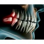 دندان عقل کشیدن