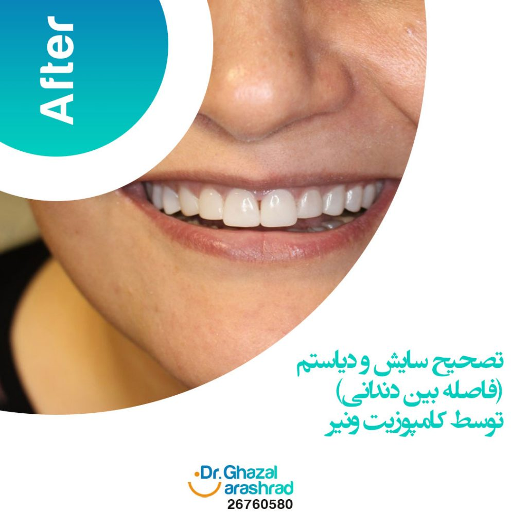 بستن فاصله بین دندانی