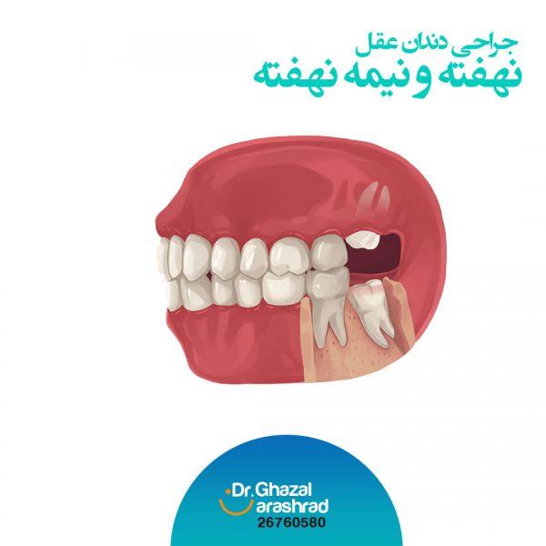 جراحی-دندان-عقل-نهفته-و-نیمه-نهفته