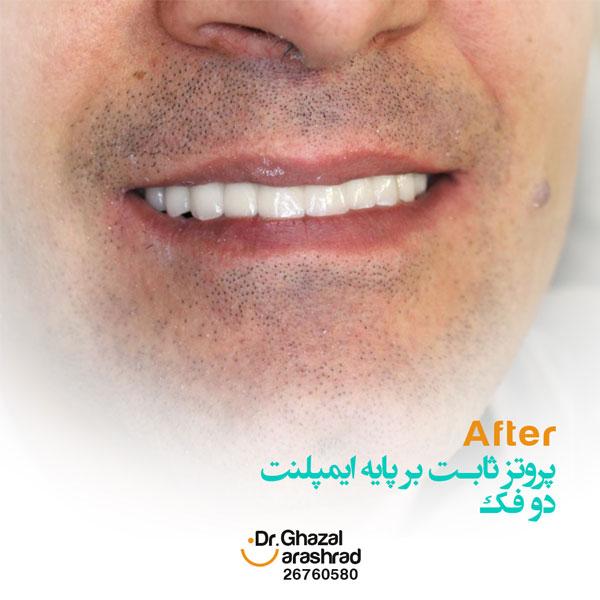 پروتز دندان به شکل ثابت