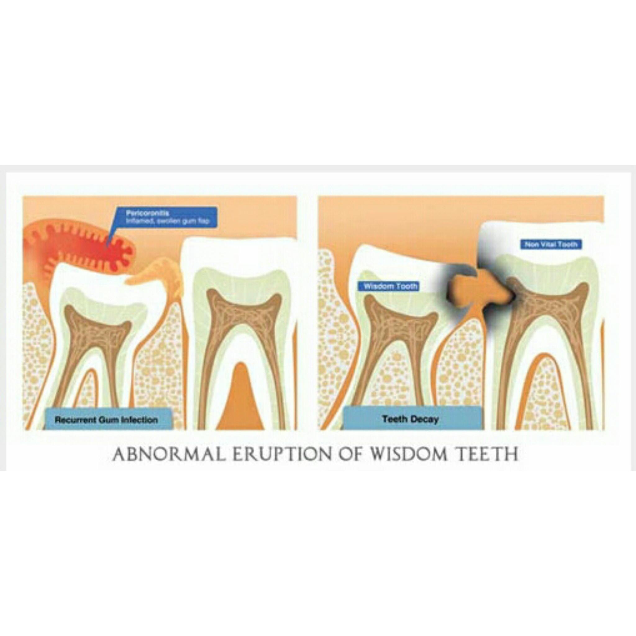 جراحی دندان عقل نهفته و نیمه نهفته