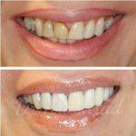 تفاوت کامپوزیت و لمینت دندان : فرق لمینیت سرامیکی و ونیر کامپوزیت چیست؟