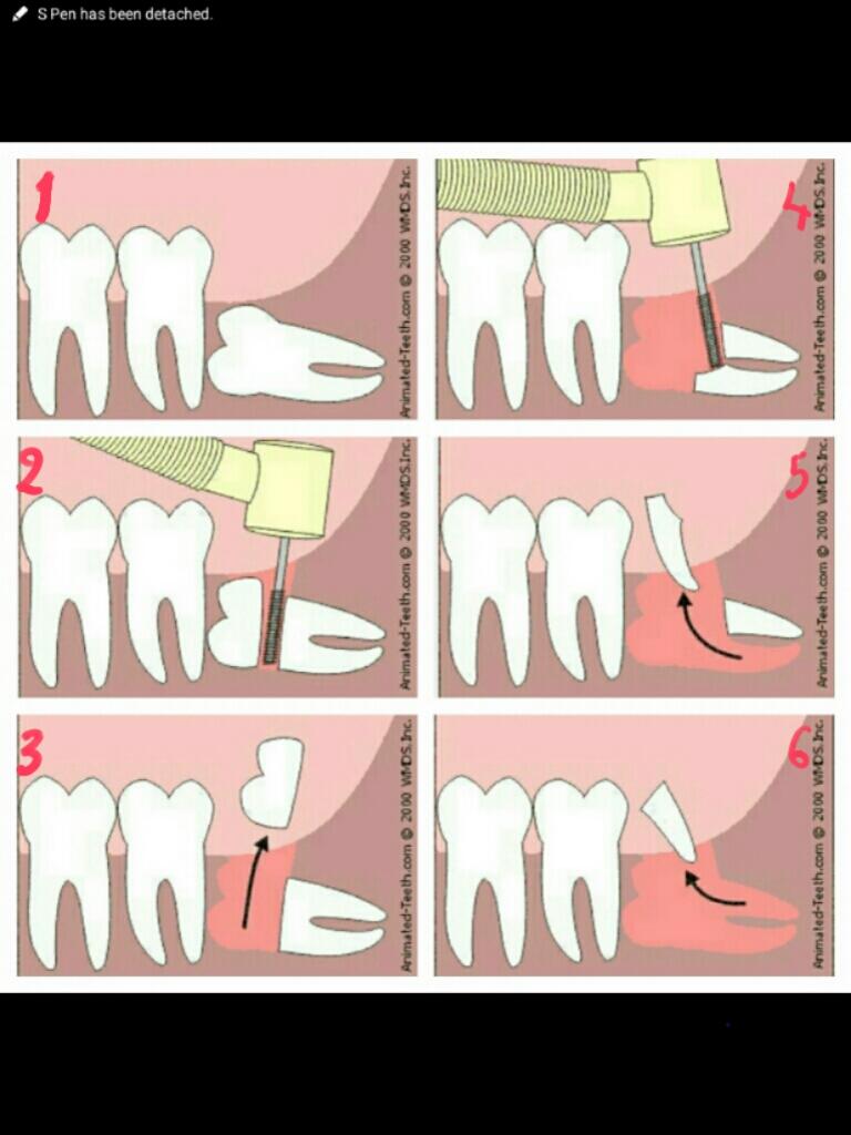دندان عقل نهفته و نیمه نهفته