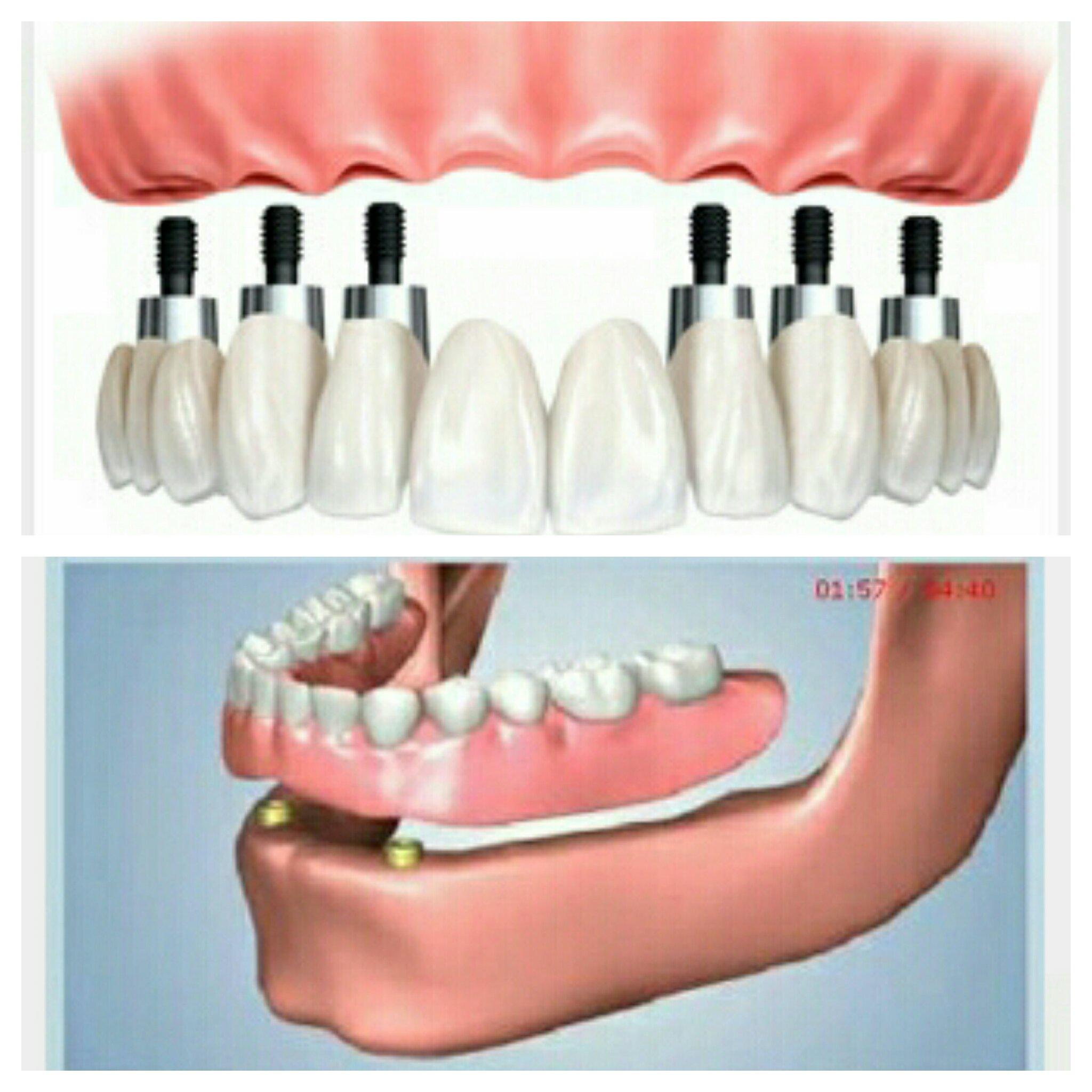 پروتز دندان و انواع آنها