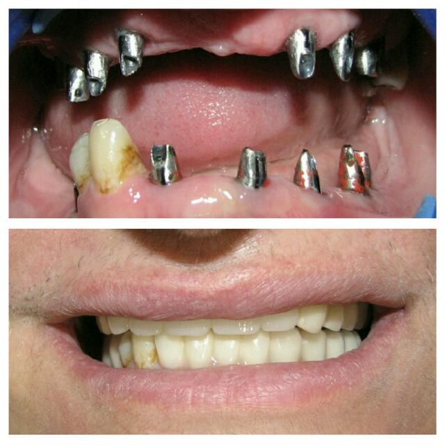 بازسازی کامل دهان با پروتز ثابت بر پایه ایمپلنت