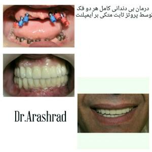 بازسازی کل دهان با اینپلنت و پروتز ثابت روی ایمپلنت