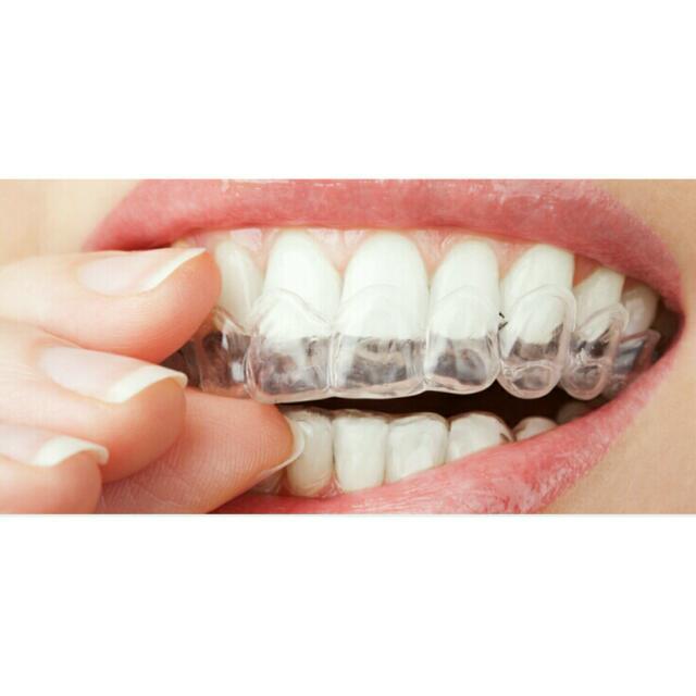 بلیچینگ دندان در منزل