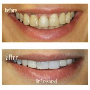 ایمپلنت دندان نیش، روکش زیرکونیا و ونیر کامپوزیت
