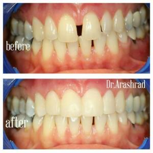 بستن فاصله بین دندانها با ونیر کامپوزیت