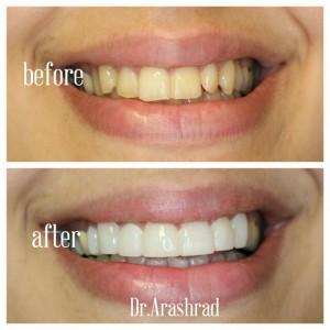 سفید کردن دندانها و تغییر فرم دندانها با ونیر کامپوزیت