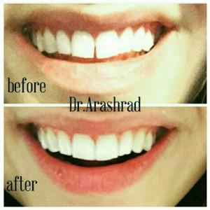 بستن فاصله بین دندانی با کامپوزیت
