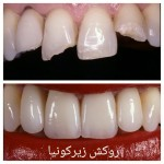 قیمت روکش دندان زیرکونیا (زیرکونیوم)  سال ۹۷