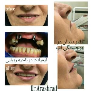 تاثیر دندان بر برجستگی و ساپورت لب