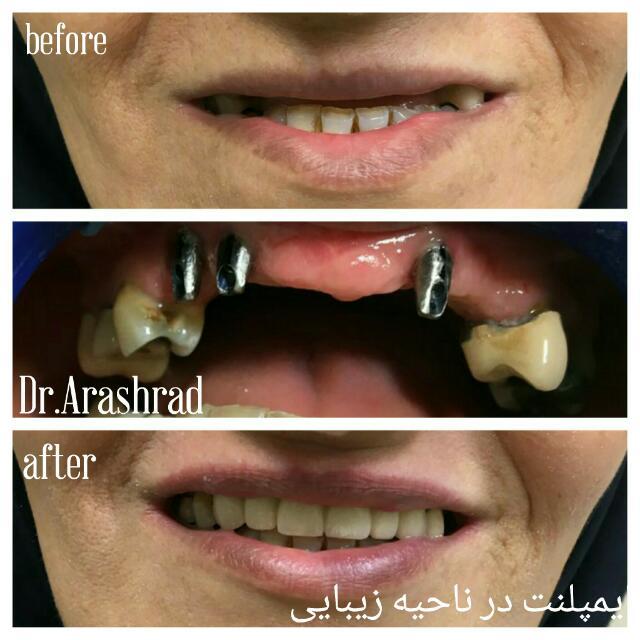 ایمپلنت دندان و پروتز