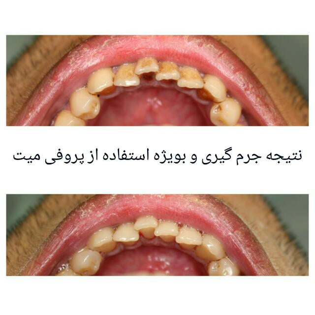 جرم گیری دندان پروفی میت