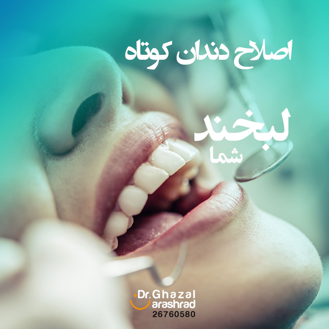اصلاح دندان کوتاه