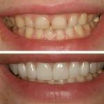 اصلاح سایز کوچک دندان و طرح لبخند