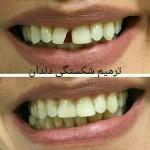 دندانپزشکی زیبایی و درمان دندان شکسته