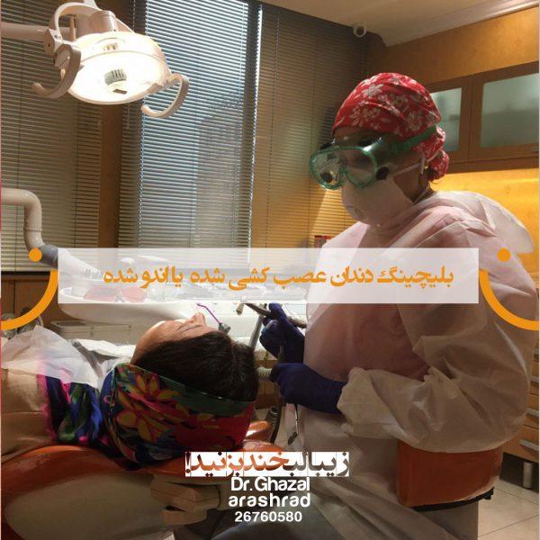 بلیچینگ دندان عصب کشی شده