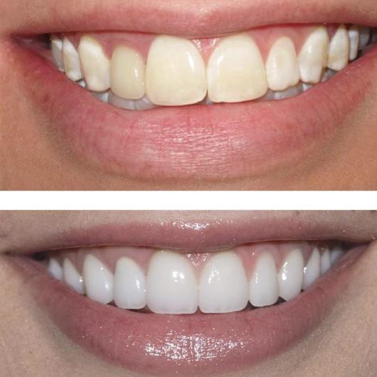 عوارض بیچینگ دندان
