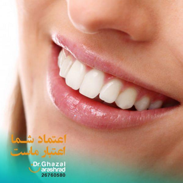 جرم گیری دندان درد دارد