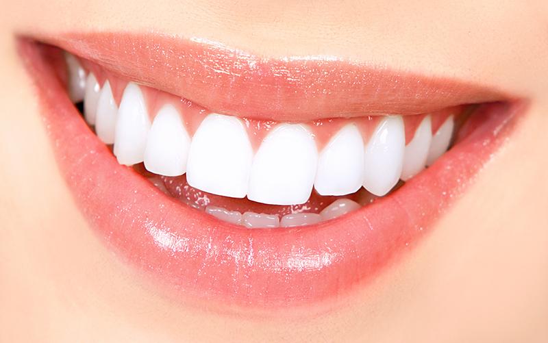 بلیچینگ دندان پر شده