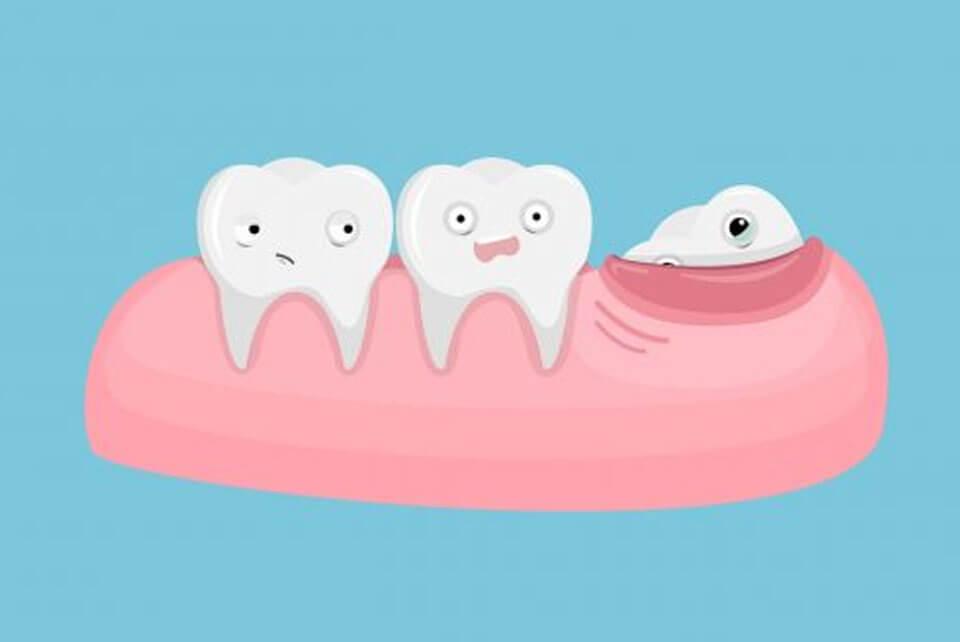 جراحی دندان عقل و مراقبت های بعد از آن