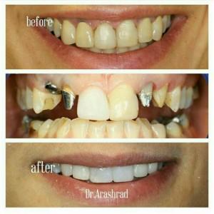ایمپلنت دندان نیش، روکش زیرکونی و لمینت کامپوزیتی