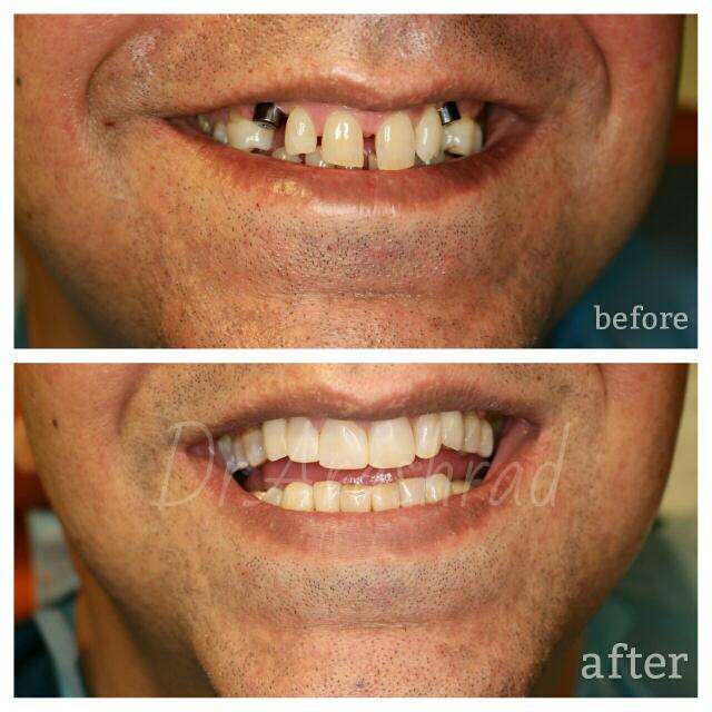 ایمپلنت دندانهای کانین(نیش) و بستن دیاستم(فاصله) دندانها با ونیر کامپوزیت