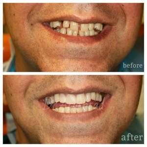 ایمپلنت دندان های نیش  بستن دیاستم(فاصله بین دندانها)