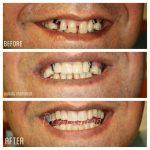 عکس های قبل و بعد از اصلاح طرح لبخند