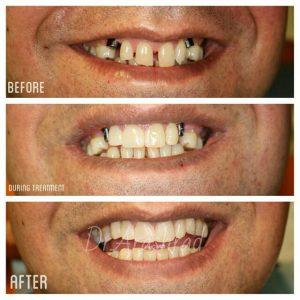 ایمپلنت دندانهای نیش و بستن دیاستم (فاصله بین دندانها)