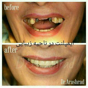 عوارض ایمپلنت دندان ایمپلنت دندانهای سانترال و لترال