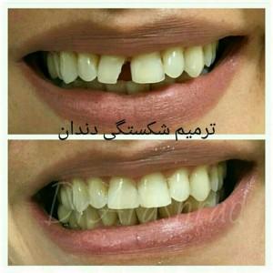 ترمیم شکستگی دندان با کامپوزیت