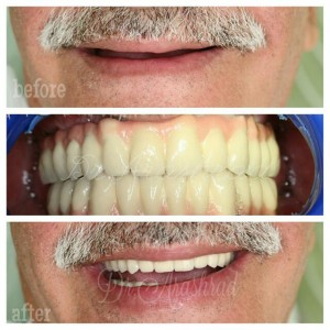 Full mouth implant supportrd prosthesis