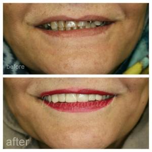 لمینیت سرامیکی (دندانهای نیش تا نیش) و روکش زیرکونیا(کرسی های کوچک یا پره مولر)