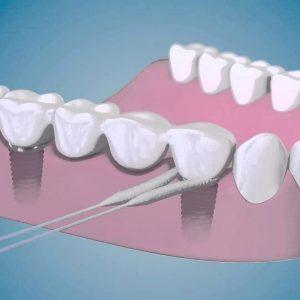 استفاده از نخ دندان سوپر فلاس برای محافظت از پروتز ایمپلنت