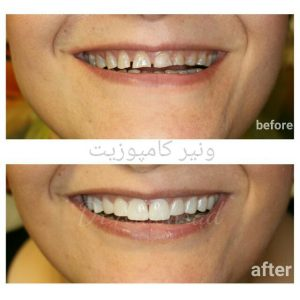 اصلاح طرح لبخند composit veneer