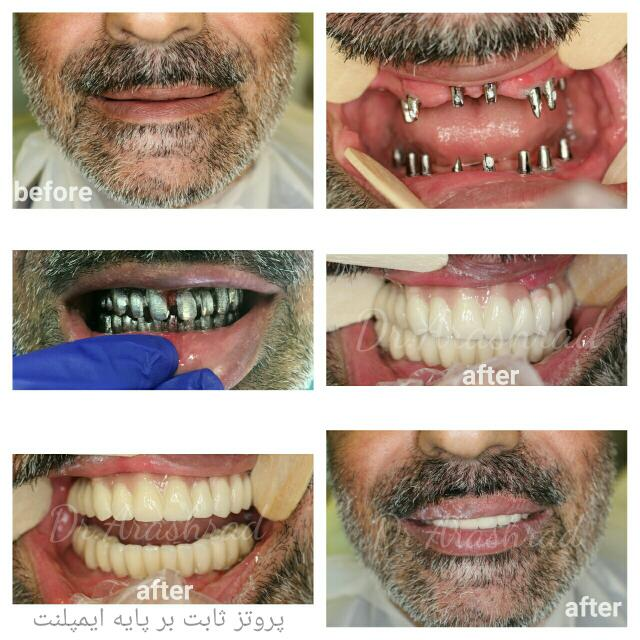Maxillary & mandibular fully bone anchoraged implant supported prosthesis