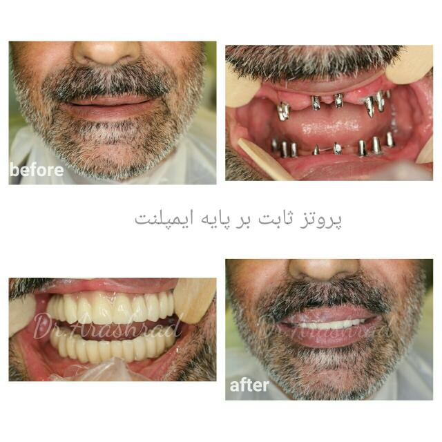 Full mouth reconstruction(fully bone anchoraged implant supported prosthesis)