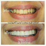 کامپوزیت دندان , نکاتی که بعضی دندان پزشکان به شما نمیگویند