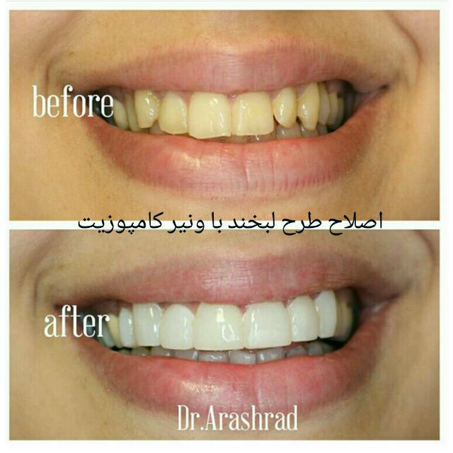 اصلاح طرح لبخند با کامپوزیت دندان