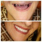 ایمپلنت تمام دندانها,هرانچه برای بازسازی کامل دهان برپایه ایمپلنت باید بدانید