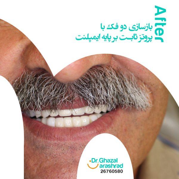 ایمپلنت تمام دندانها