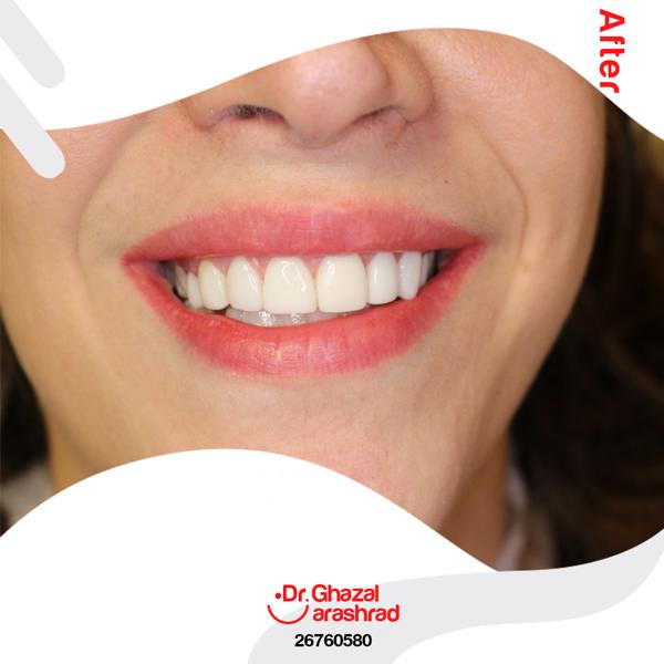 تفاوت کامپوزیت ونیر و روکش دندان